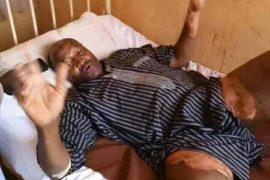 Aliyu in hospital bed