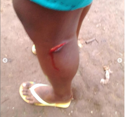 f - Wicked Uncle Beats Girl With Sharp Knife (Photos)