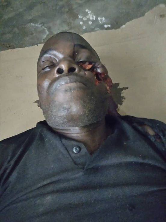o - APC Vice Chairman Killed By Gunmen In Rivers (Disturbing Image)