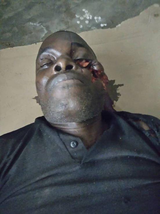 The slain APC Vice chairman