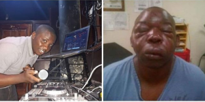 Zambian DJ Hero before and After the beating
