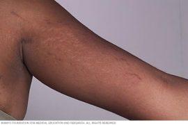 Nigerian Woman with stretch mark