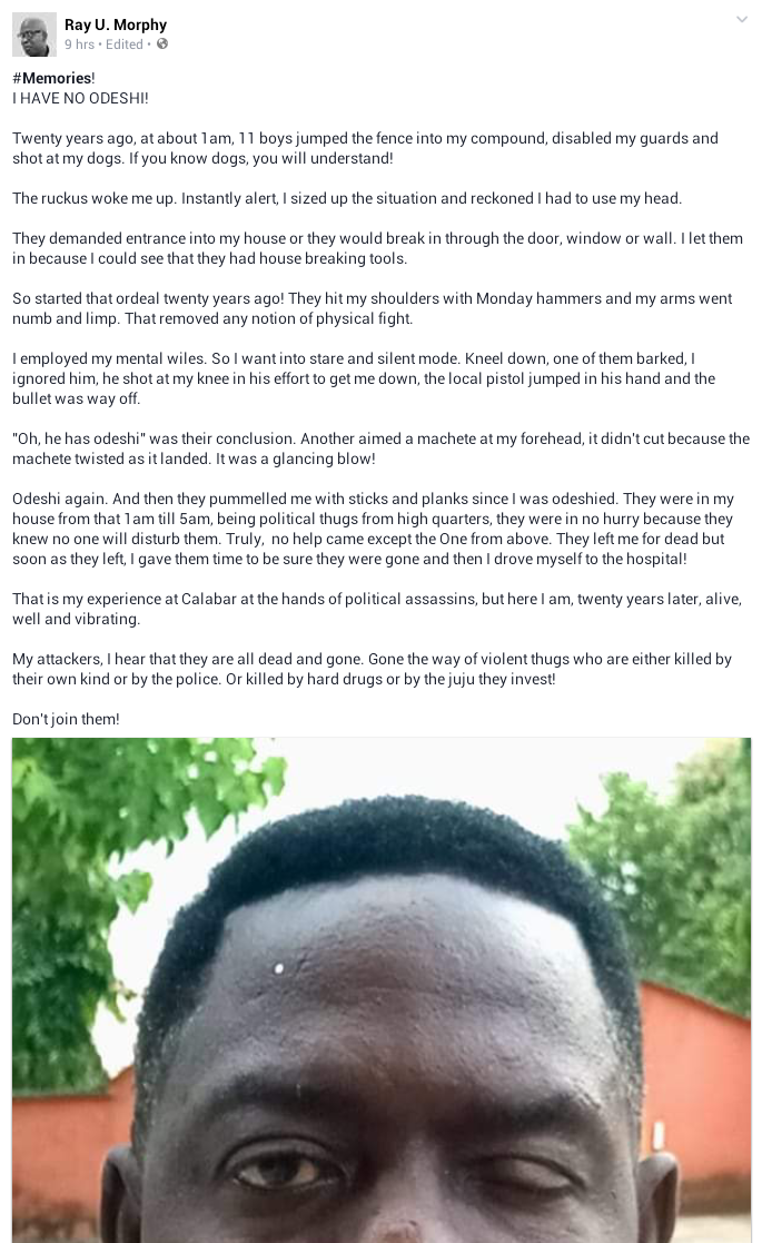 D310C7A1 0FB5 4C68 9698 1A142198E788 - Nigerian Man Narrates How His Body Resisted Attack By 11 Hoodlums