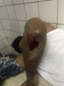 EMdla7mW4AA9dYE 1 225x300 - Hoodlums Attack Deji Adeyanju's Anti-Government Protest In Abuja