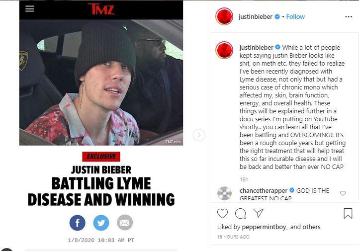 JB - Singer, Justin Bieber Diagnosed With Lyme Disease (Photo)