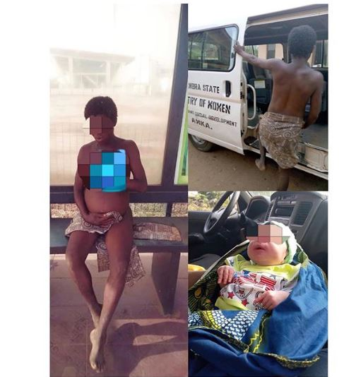 Mentally Challenged Woman