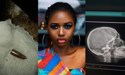 Lady survives bullet in her head for five days in Ebonyi (Photos)