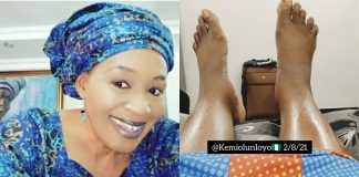 """I'm Bedridden And Can't Walk"" - Kemi Olunloyo Cries Out"